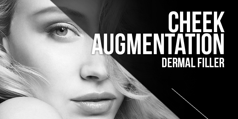 Cheek Augmentation Treatments