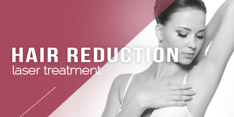 Laser Hair Reduction Treatments