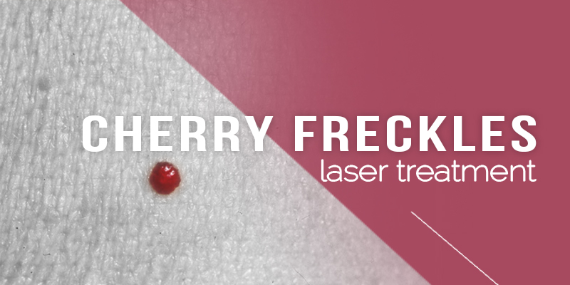 Cherry Freckle Laser Treatments