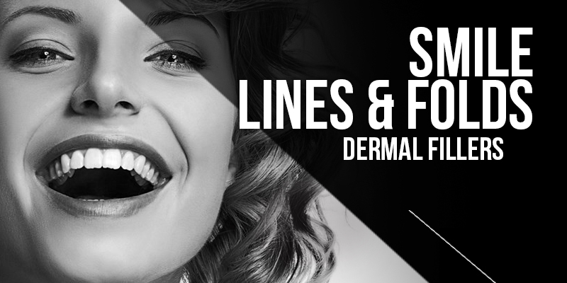 Smile Line and folds injection Treatments
