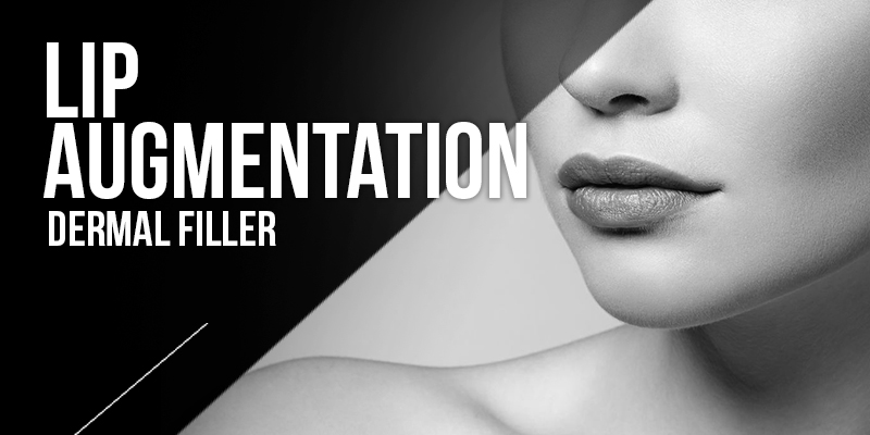 Lip Augmentation Treatments