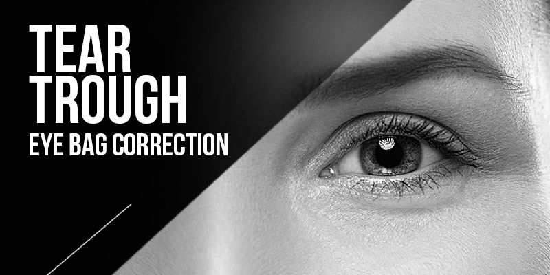 Tear Trough Eye Bag Treatments