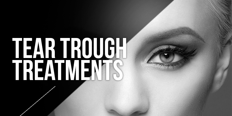 Eye Bag Correction Treatments