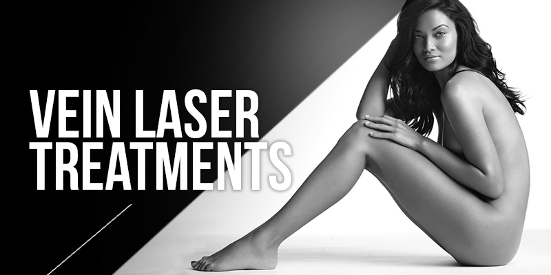 Vein Laser Treatments