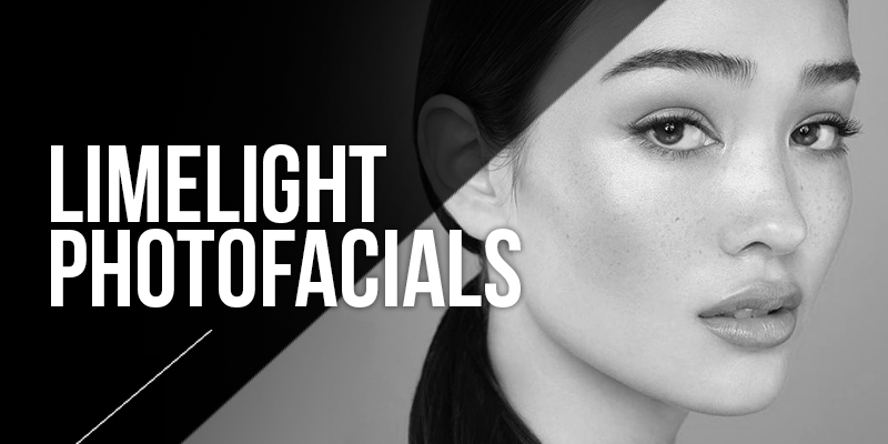 Limelight Photofacial Laser Treatments