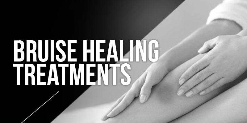 Bruise Healing Treatments
