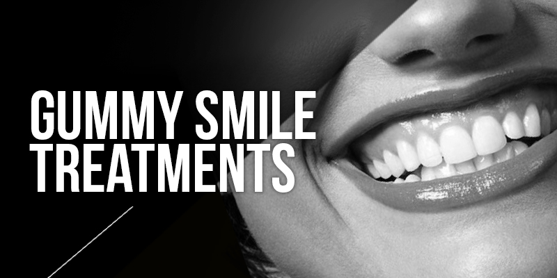 Gummy Smile Botox Treatments